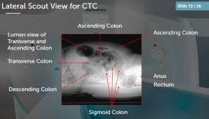 ct registry review